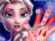 Elsa se opereaza la mana